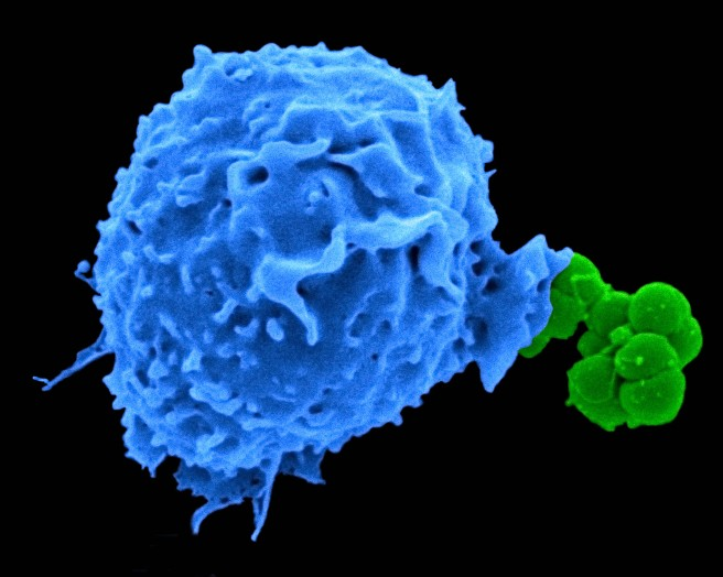 A human neutrophil (blue) taking up Neisseria gonorrheae. (Image: Ryan Gaudet)